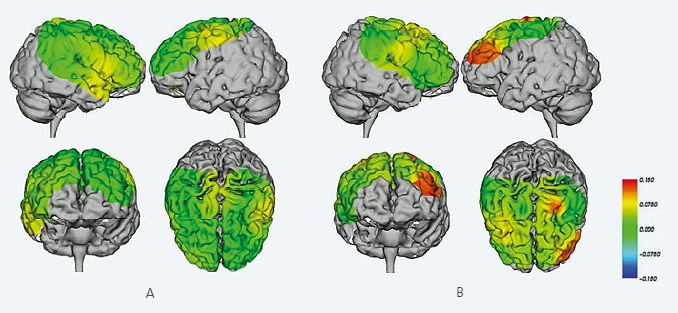 Brain Activity during Lower-Limb Locomotion (Walking on a Treadmill)