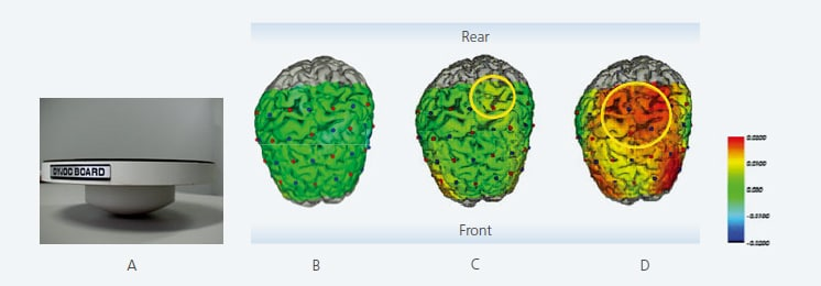 Brain Activity during Upright Posture Control
