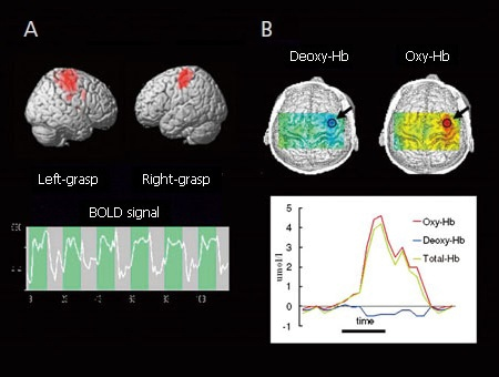 Comparison of BOLD-fMRI (A) and fNIRS (B) for Normal Healthy Adult