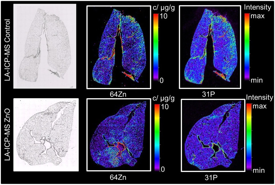 Imaging of Lung Sections of Rats Exposed to Zinc Oxide Nanoparticles