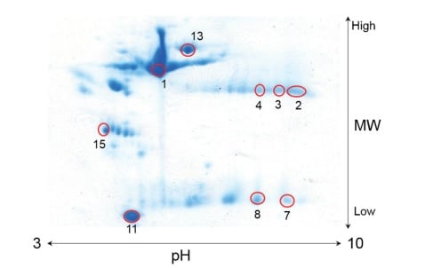 Two-dimensional Electrophoresis Gel Image of  Human Serum Protein  Red Circles: Separated Spots