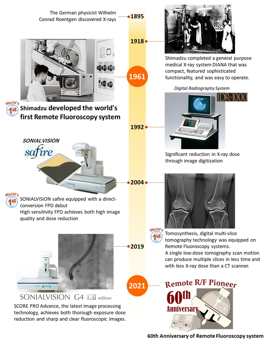 Milestones of Shimadzu Remote R/F system