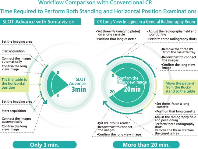 Workflow Comparison with Conventional CR Time Required to Perform Both Standing and Horizontal Position Examinations