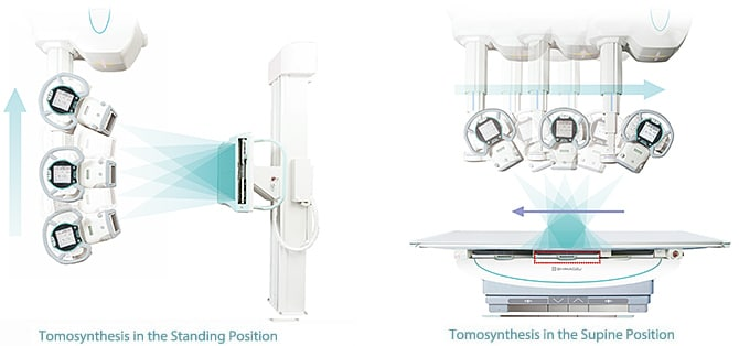 Tomosynthesis (Digital Multislice Tomography) (Option)