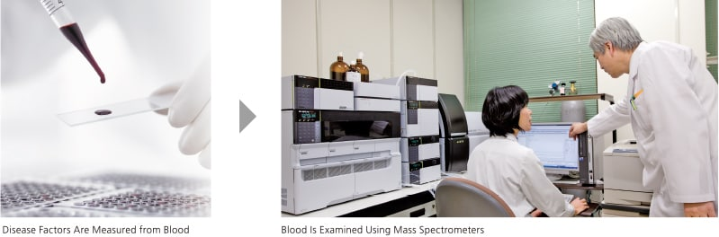 Tandem Mass Spectrometry Method Established from Joint Research with Shimane University Dramatically Shortens Analysis Time