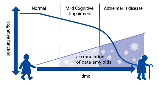 Hypothesis about progression Alzheimer's disease